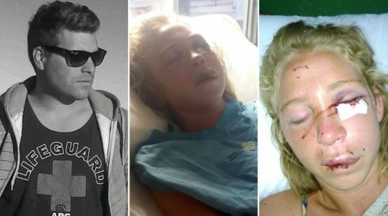 Chica adolescente golpeada